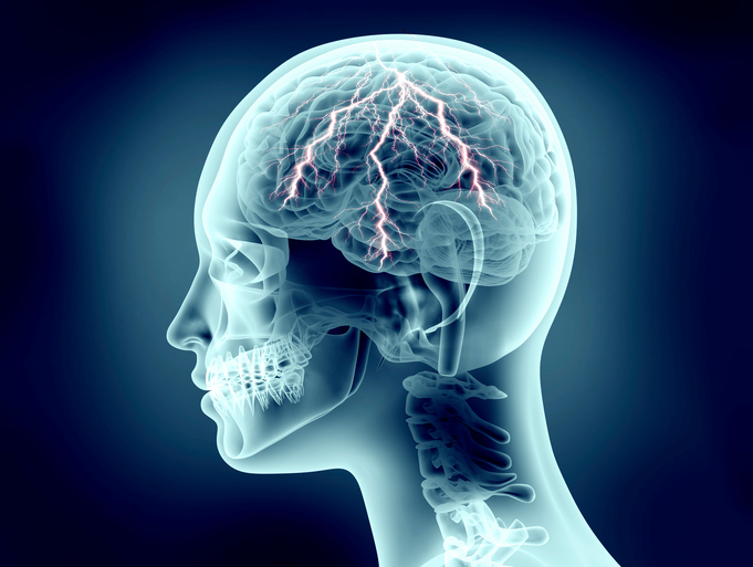 Znalezione obrazy dla zapytania pain head
