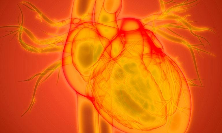 Clinical Assessment of Potential Cardiac Risk for Your Drug